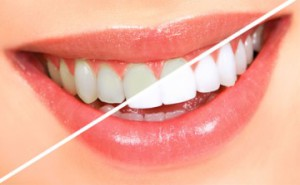 Почему темнеют зубы?